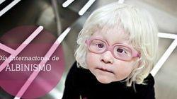 Hoy es el día de los albinos; ¿qué sabes de