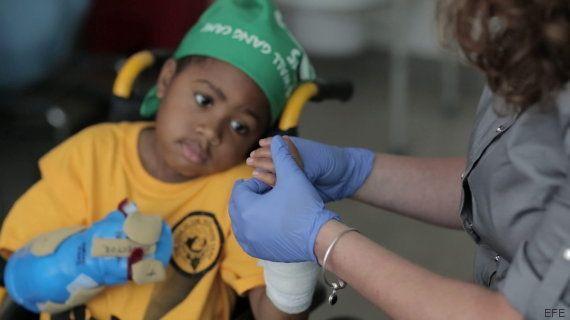 El primer niño del mundo en recibir un trasplante de manos
