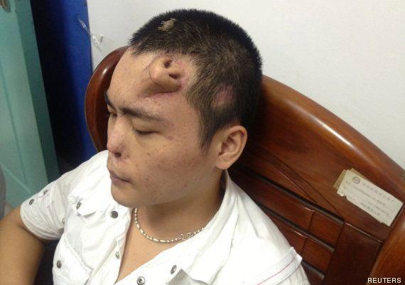 Médicos chinos crean una nariz en la frente de un