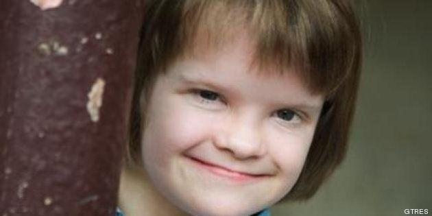 Investigación sobre el síndrome de Down: un gen podría neutralizar el cromosoma