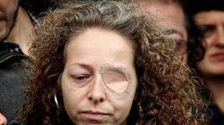 La Generalitat indemniza a la mujer que perdió un ojo por un disparo de los