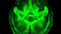 Así es un cerebro transparente