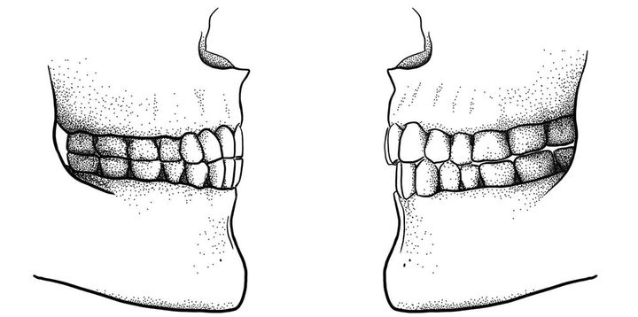 The difference between a Paleolithic edge-to-edge bite (left) and a modern overbite/overjet bite (right).