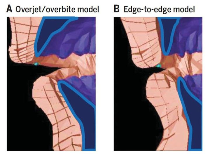 Biomechanical model of producing an 'f' sound with an overbite/overjet (left) versus an edge-to-edge bite (right).