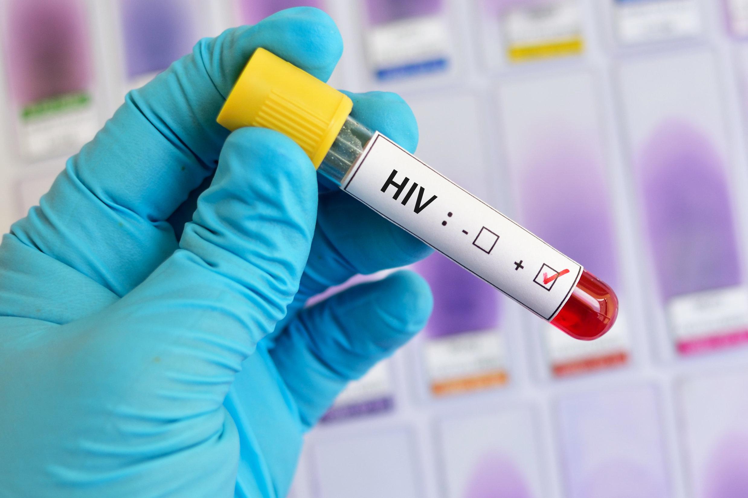Homem deve pagar indenização por transmitir HIV a ex-mulher, decide