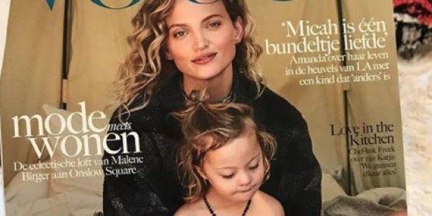 La mannequin Amanda Booth pose en Une de Vogue avec son fils atteint de trisomie