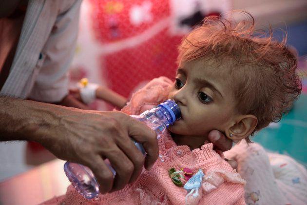 Au Yémen, Amal Hussain, petite fille devenue symbole de la famine est