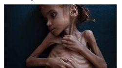 La fillette de 7 ans devenue symbole de la famine au Yémen est