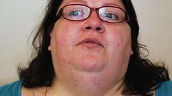 Rejetée à cause de son obésité, elle a transformé son surpoids en sa plus grande
