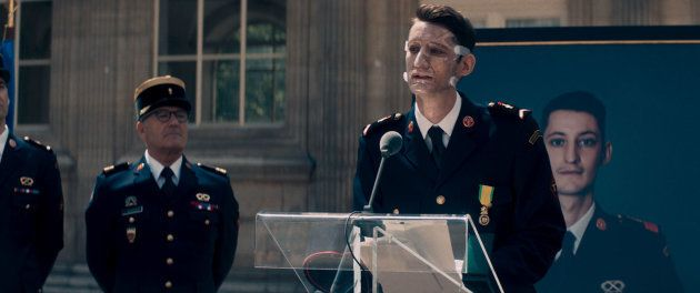 Dans le film, le sapeur-pompier Franck est gravement brûlé après une intervention sur un