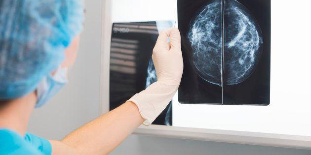 Si une mammographie 'normale' ne vous met pas à l'abri d'un vrai cancer, une anomalie détectée ne signifie pas une vraie maladie.