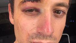 Hugo Clément touché par un projectile à proximité de la manifestation des gilets