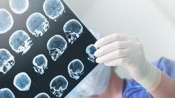L'herpès pourrait être liée au développement de la maladie