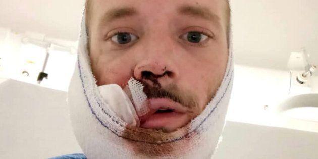 David, 31 ans, a été touché par un tir de flashball lors de la manifestation parisienne des gilets jaunes,...