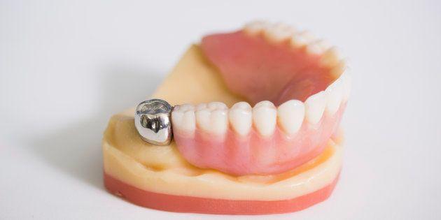 Le nouveau remboursement des soins dentaires pourrait signer le retour des prothèses en