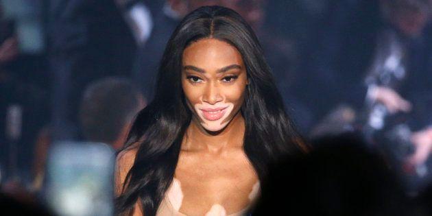 Winie Harlow, célèbre mannequin américaine, est atteinte de vitiligo. Elle s'est fait remarquer dans l'émission