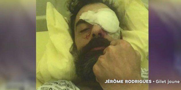 Blessé à l'oeil, le gilet jaune Jérôme Rodrigues