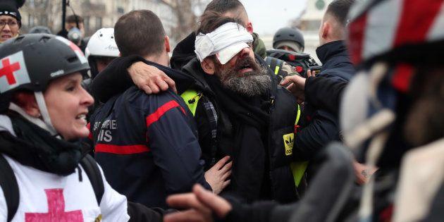 Jerome Rodrigues après sa blessure samedi 26 janvier place de la Bastille à