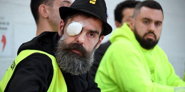 Figure des gilets jaunes, Jérôme Rodrigues a été touché à l'œil par un tir de LBD, samedi 25 janvier.