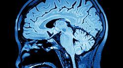 On sait détecter l'activité consciente du cerveau chez des personnes