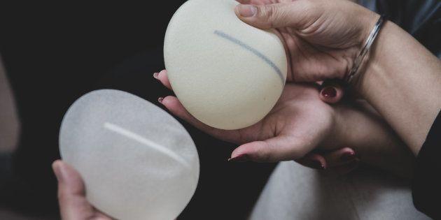 En France, sur les dix dernières années, trois femmes sont décédées à cause de cancers liés à des implants