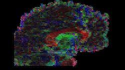 Cette start-up veut télécharger votre cerveau (mais doit vous tuer