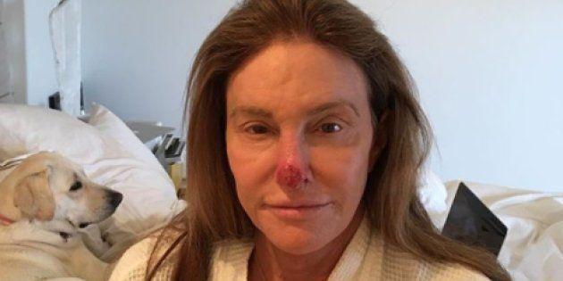 Avec cette photo postée sur Instagram, Caitlyn Jenner alerte ses fans sur les dangers du