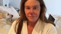 Caitlyn Jenner publie une photo choc pour vous pousser à mettre de la crème