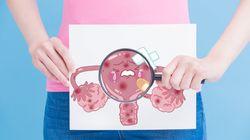 Mesdames, le dépistage du cancer du col de l'utérus sera bientôt pris en charge à