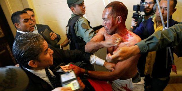Des députés vénézuéliens en sang au Parlement à Caracas le 5 juillet