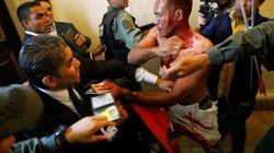 Des députés vénézuéliens en sang au Parlement, attaqués par des partisans de