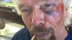 Richard Branson a eu un grave accident de