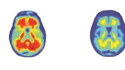 Cette étude relance l'espoir d'un traitement contre