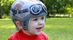 Les médecins de ce bébé atteint de plagiocéphalie ont fait une suggestion géniale à ses