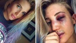 Cette star de la MMA montre la brutalité de son sport avec des selfies