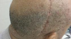 Boris Faure publie une photo de son crâne un mois après son agression à coups de