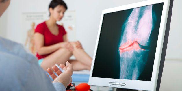 L'arthrose du genou (illustration)