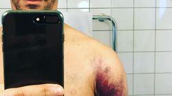 Ce selfie de Tomer Sisley fait mal par
