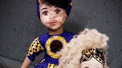 Vitiligo, albinisme: cette artiste créé des poupées pour toutes les