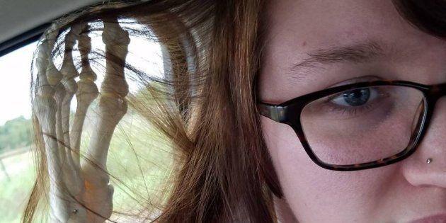 Kristi Loyall tourne son amputation en dérision grâce à un compte Instagram hors du commun.