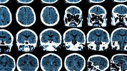 L'anomalie à l'origine de la maladie de Parkinson découverte par des