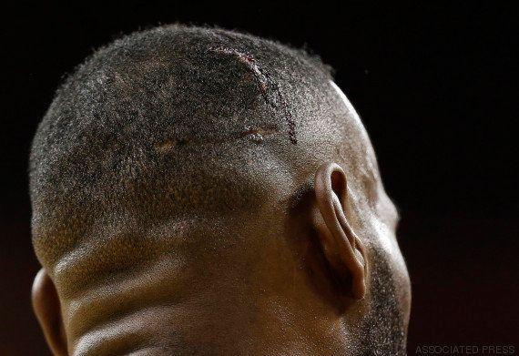 VIDÉO. Finale NBA 2015 entre Cleveland et Golden State : LeBron James blessé après une chute tête la...