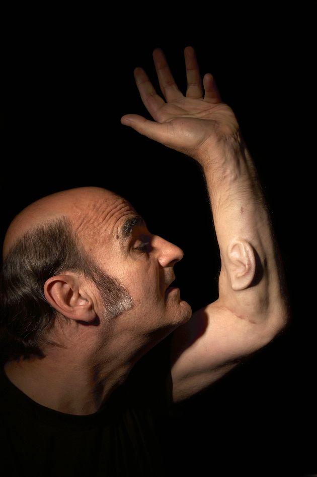 VIDEO. L'artiste australien Stelarc s'est fait pousser une oreille dans l'avant-bras