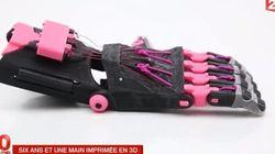 Maxence, 6 ans, va recevoir cette prothèse de main imprimée en
