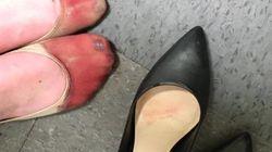 La photo de ces pieds ensanglantés dénonce le sexisme du monde du
