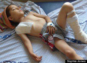 REPORTAGE - Avec les enfants blessés de