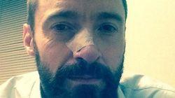 Le combat de Hugh Jackman contre le cancer n'est pas
