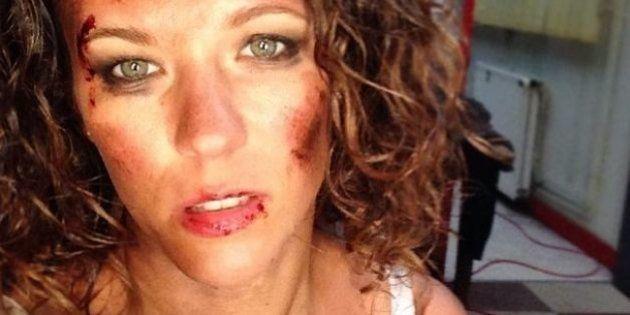 Lorie poste une photo d'elle en sang sur