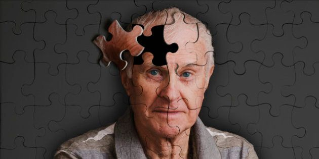 alzheimer's, memory loss and senile dementure