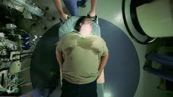 VIDEO. Comment l'obésité s'installe depuis